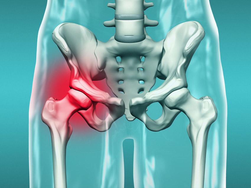 Artroskopik Kalça Ameliyatı