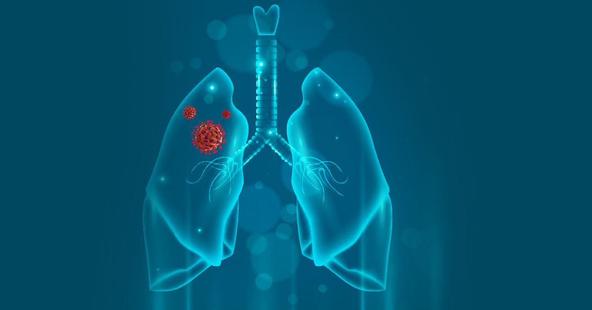 Akciğer Kistleri (Hidatik Kistler)
