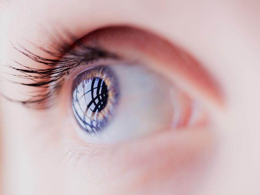 Göz Nakli (Kornea Nakli)