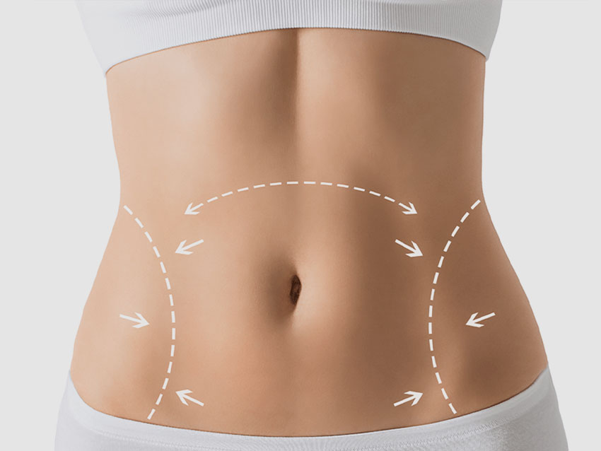 Liposuction (Yağ Alma)