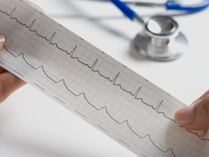 EKG ve Eforlu EKG