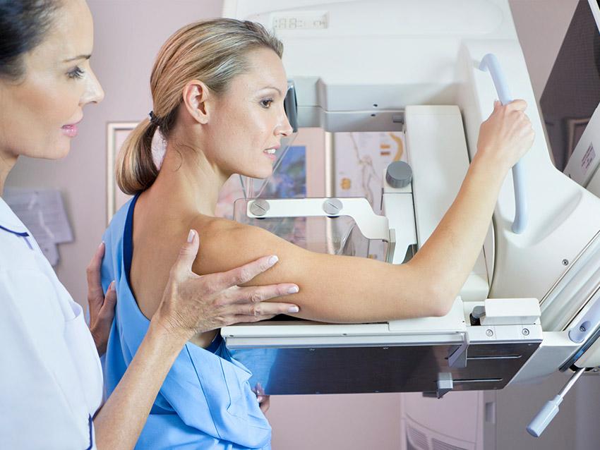 Dijital Mammografi