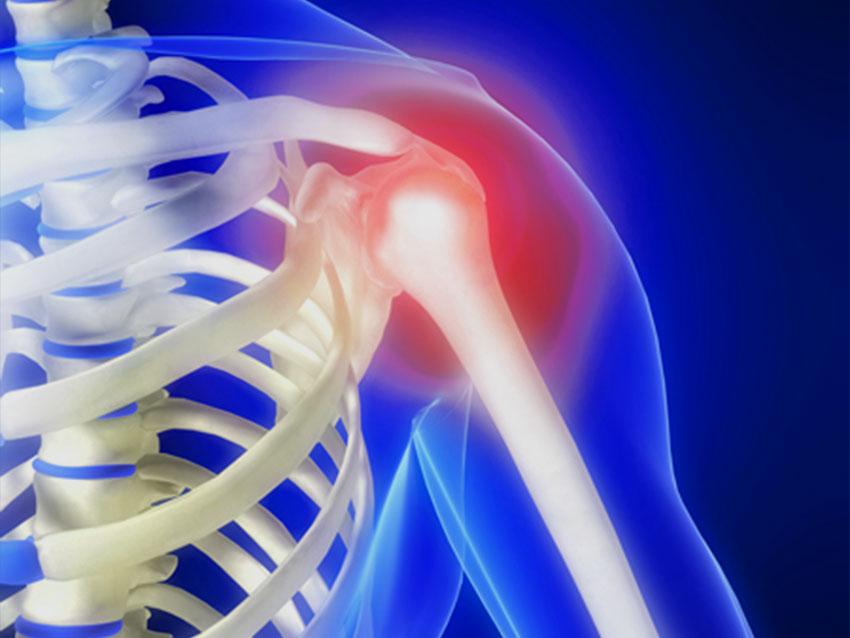 Artroskopik Omuz Ameliyatları